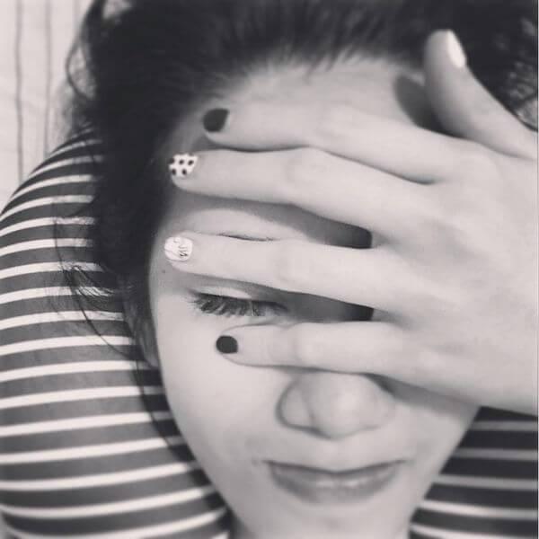 【素人分享】搶救鼻子大作戰– 看醫美小叮噹 黃雍宗醫師 如何解決小護士的煩惱!!!!!